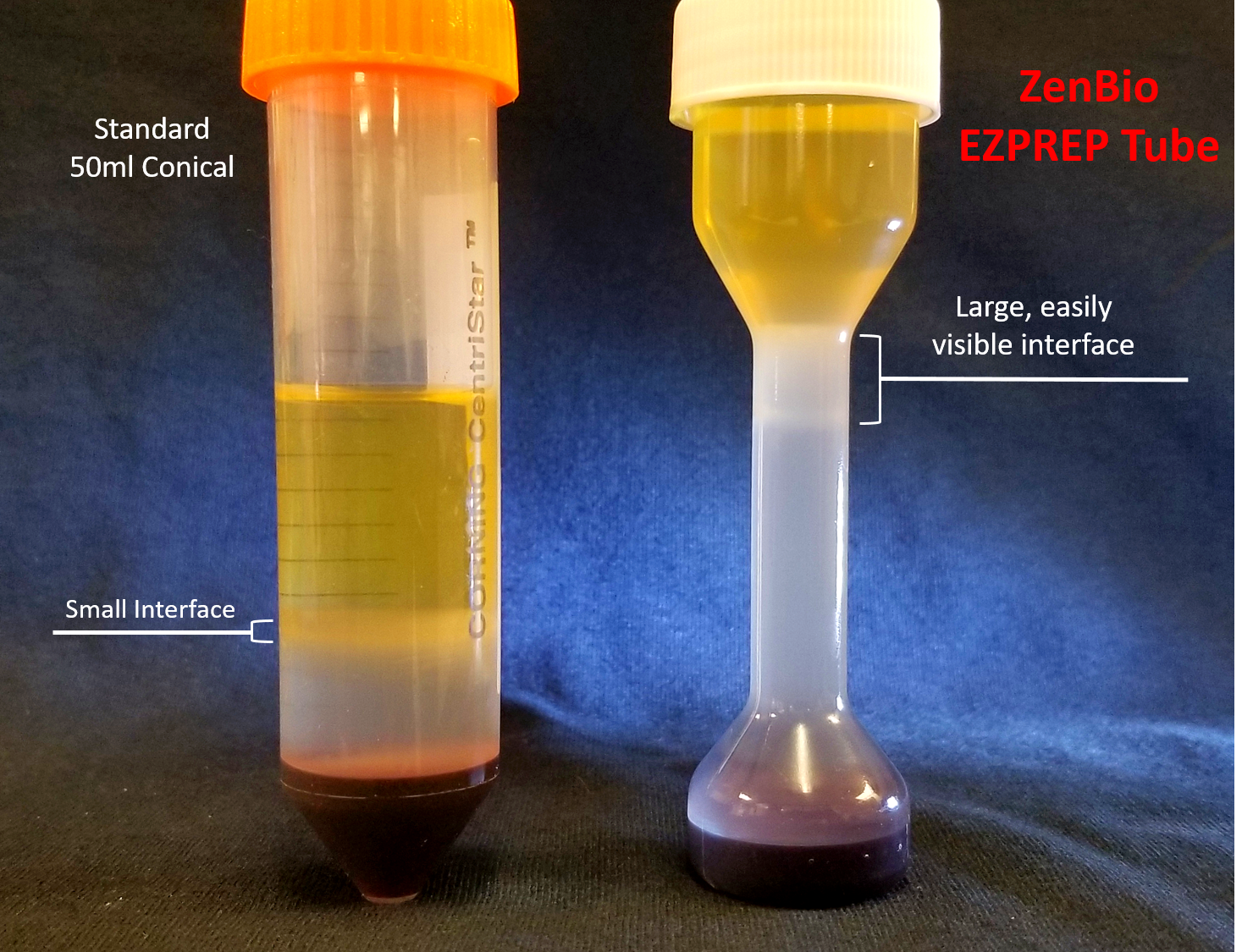EZPREP Peripheral Blood Mononuclear Cell Isolation Kit