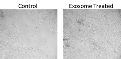 Human Exosomes Control and Treated Photograph