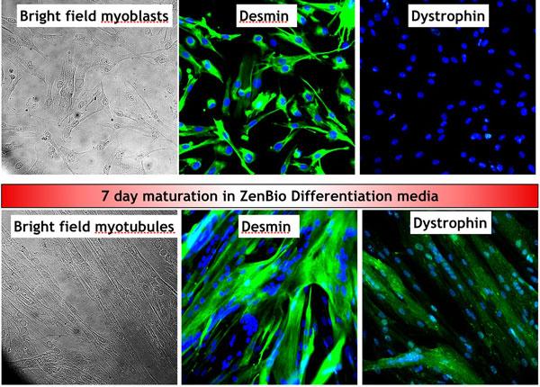 Skeletal Myocytes